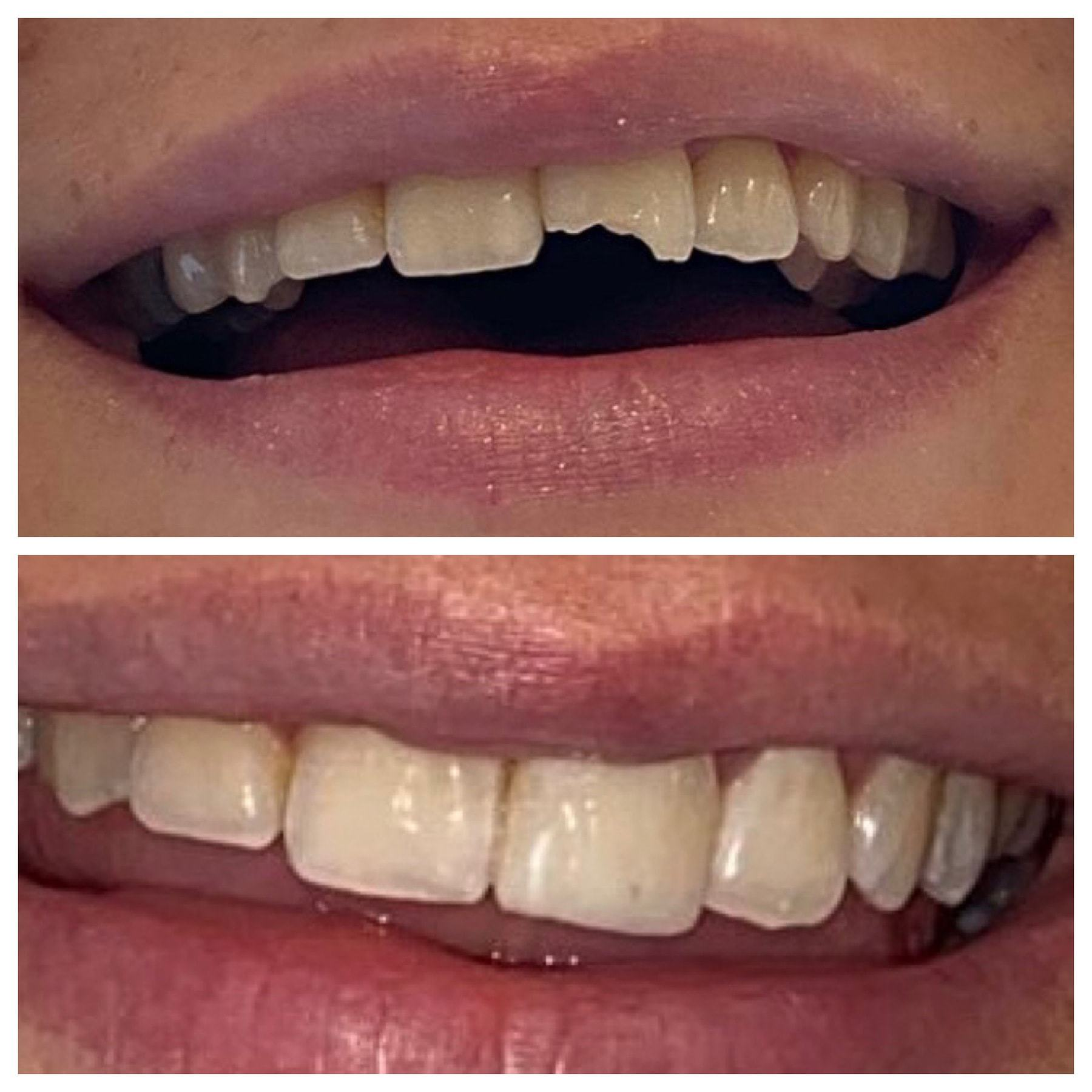 Emergency Dentist Harrogate